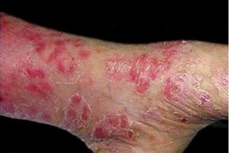 哪些是银屑病的危害