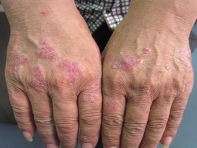 秋冬季牛皮癣患者应注意预防感冒