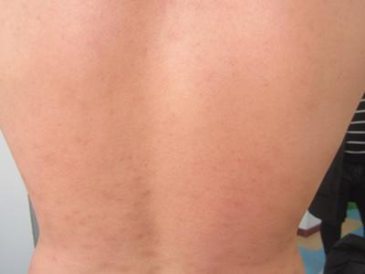 牛皮癣皮肤病护理要注意什么